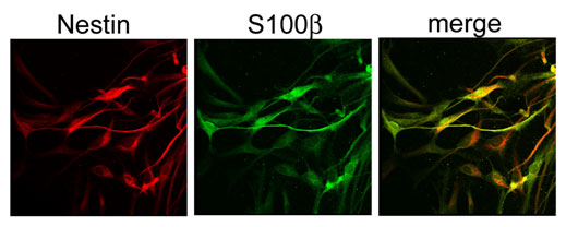 Graphic showing confocal analysis of hippocampal stem cells isolated from adult mice.
