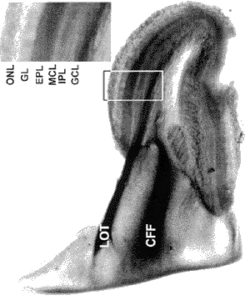 Image showing the olfactory bulb