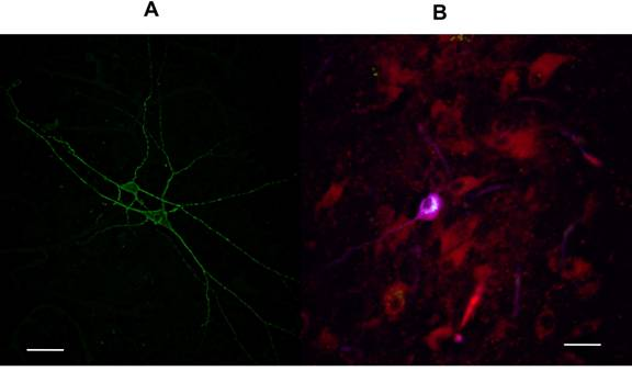 Identification of PPN neurons