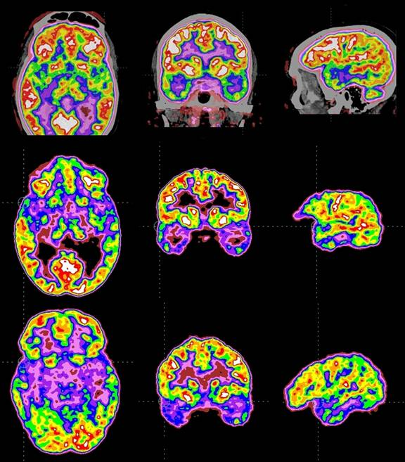 Brain scans showing effects of TMS on tinnitus